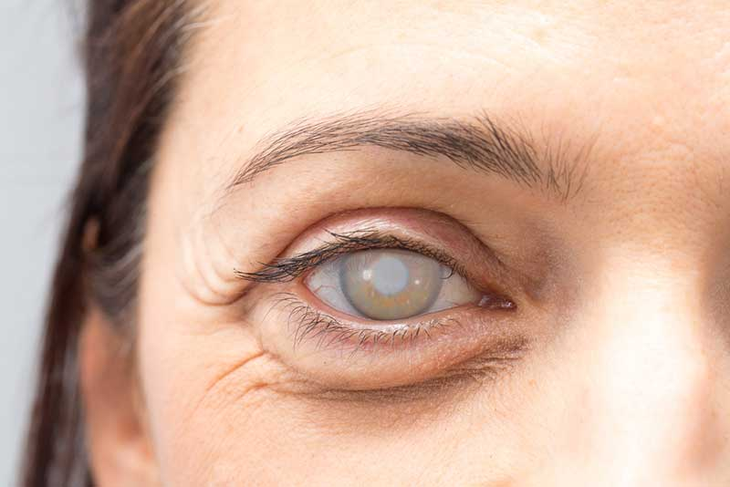 Cataracts  Bradenton, FL